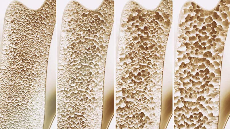 Osteoporosis From Drinking Milk